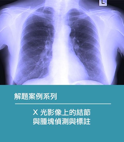 X光影像上的結節與腫塊偵測與標註